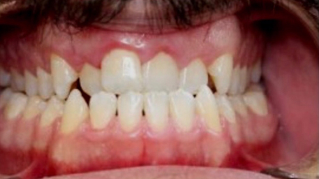 Before and After Images Dentist Abbotsford VIC 3067, Australia