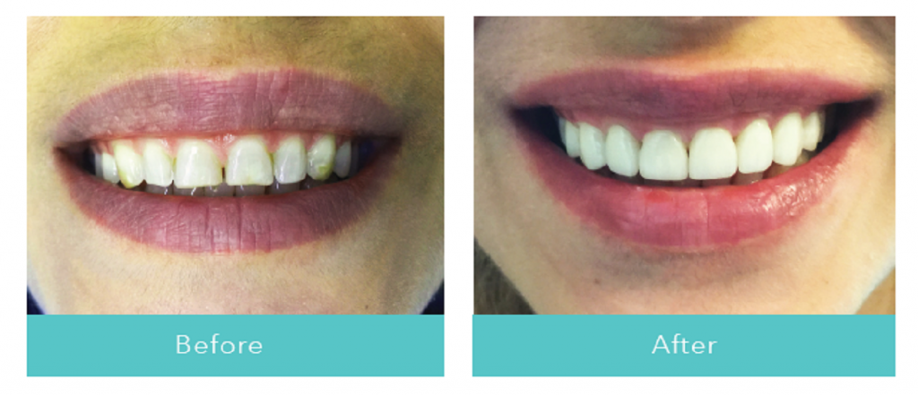 Dentist Abbotsford before after pictures with Veneers