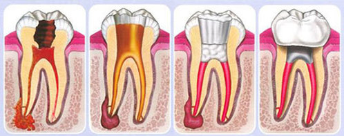 Detecting Root Canals