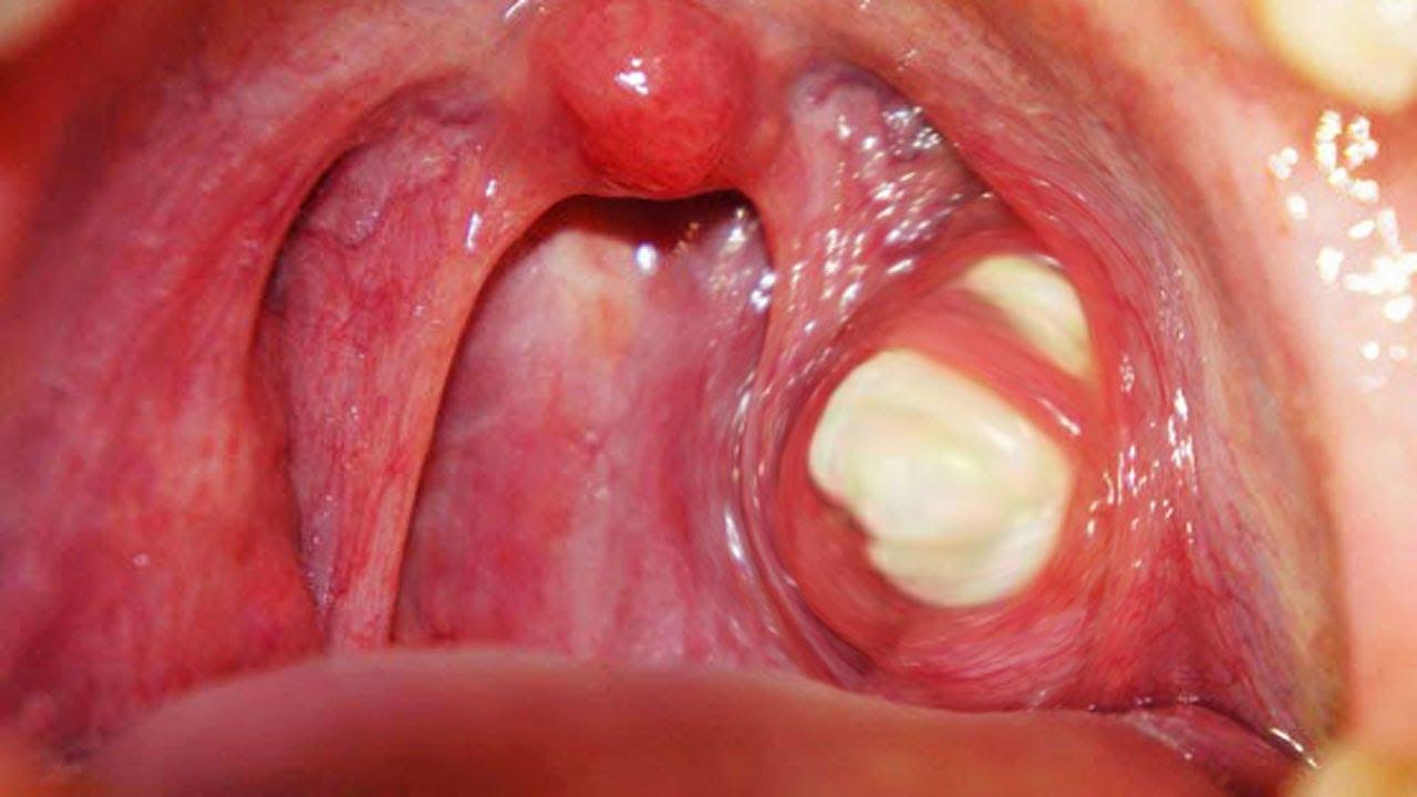Understanding The Tonsil Stones Abbotsford Dental