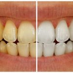 Do you need teeth cleaning? Yellow teeth | Abbotsford Dental before and after images
