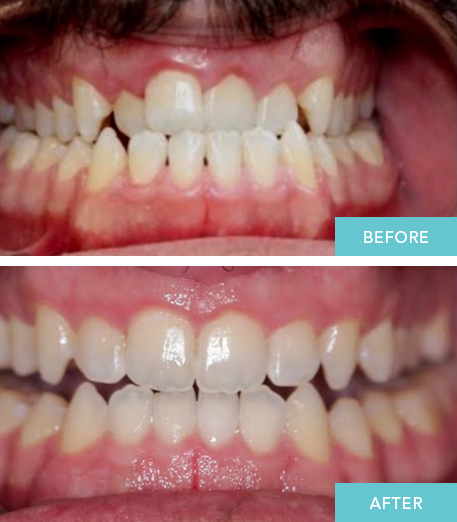 Dentist Abbotsford before and after pictures