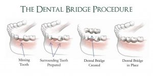 Dental Bridge Procedure - Abbotsford Dental Clinic