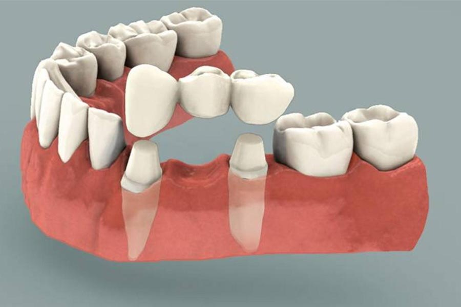 Dental Bridges Abbotsford Dental