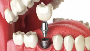 Dental Implants - Abbotsford Dental Clinic