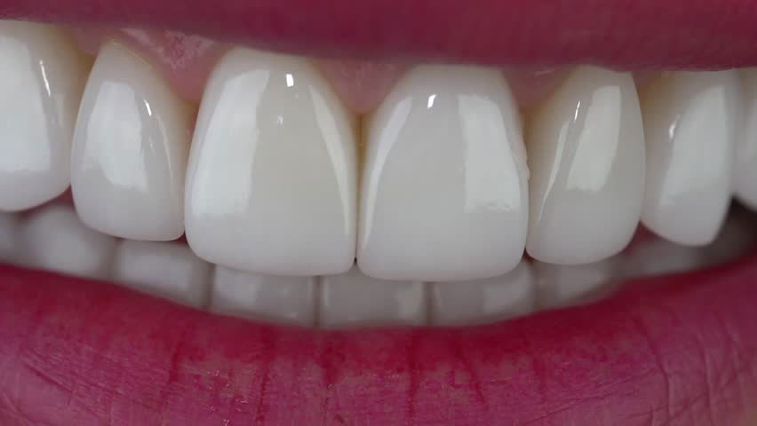 Dental Veneers Abbotsford Dental Clinic