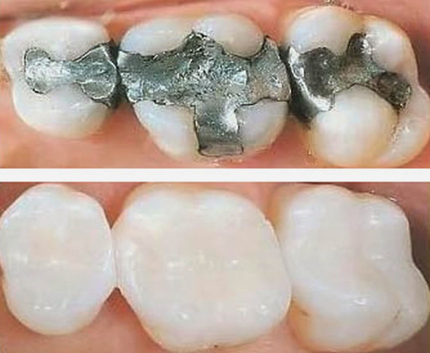 Dental White Fillings vs. Silver Fillings | Dentist Abbotsford