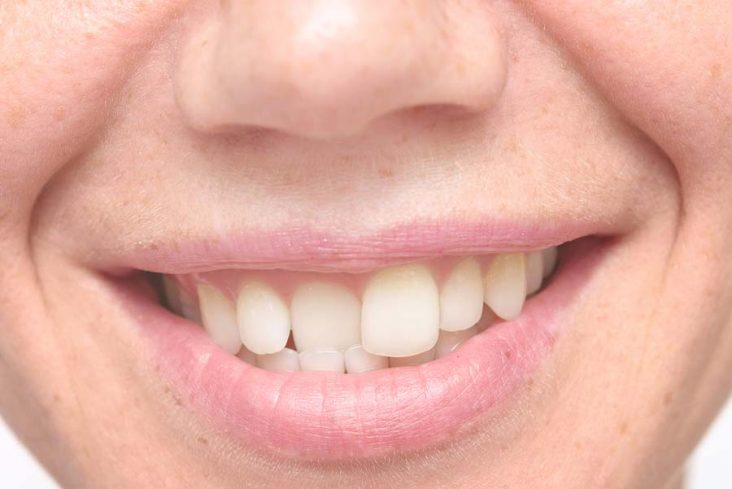 Are Your Teeth Crooked?