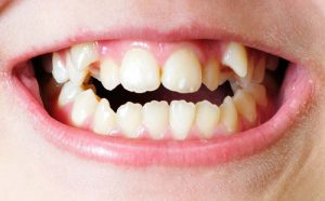 Do you need Alignment for Crooked Teeth?