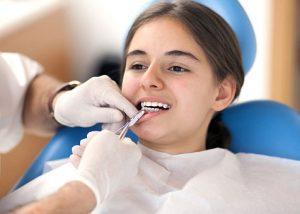 Collingwood dentist Veneer Specialist