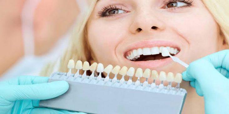 Veneers Specialist Dentist Abbotsford