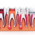 root canal treatment melbourne